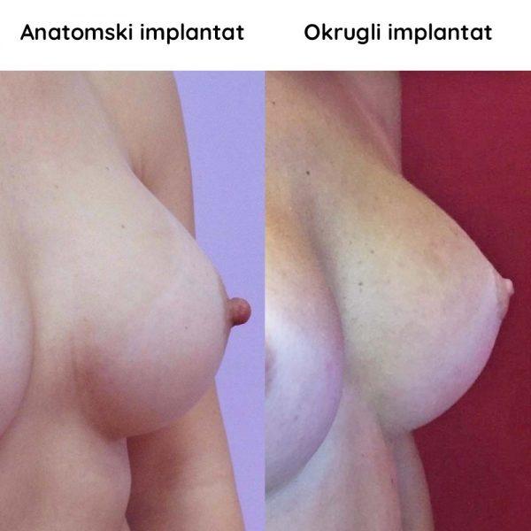 ANAT VS OKR DR OLIVERA